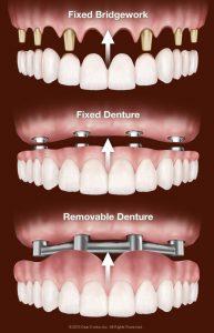 Protezele dentare detasabile