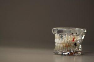 Endodontie la microscop