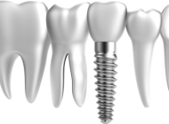 tipuri de implanturi dentare