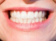 tipuri de proteze dentare